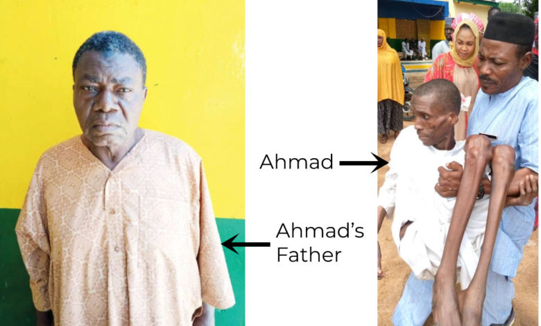 Story Of Ahmad, The 30-Year-Old Man Locked Up By Parents For 7 Years