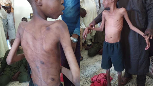 Another Starved, Tortured Boy Rescued From Step Mother In Maiduguri, Borno State